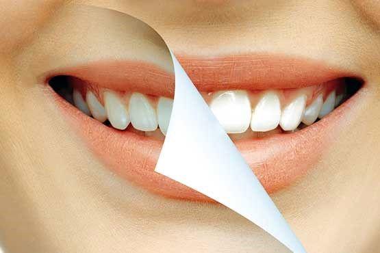 راز دندانهای زردی گرفته!