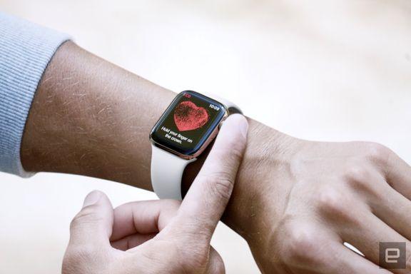 سلطه اپل و شیائومی بر بازار گجتهای پوشیدنی