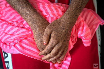 شیوع تب دانگ در آسیا