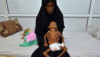 سازمان ملل نسبت به خطر گرسنگی 10میلیون یمنی هشدار داد