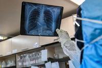تاثیر بلندمدت ویروس کرونا بر ریه چیست؟