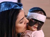 نوزادی که با ماسک بتمن متولد شده! +عکس