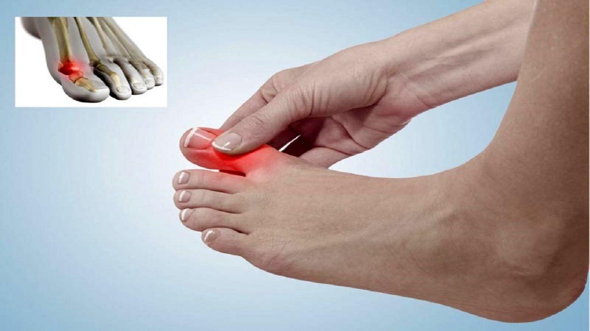 این ۴ بیماری با درد انگشت شصت پا خود را نشان می دهند
