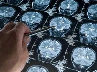 امید به درمان آلزایمر با داروی ترکیبی دیابت