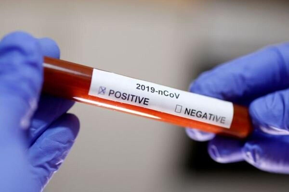 مبتلا شدن ۳پرستار فرانسوی به ویروس کرونا