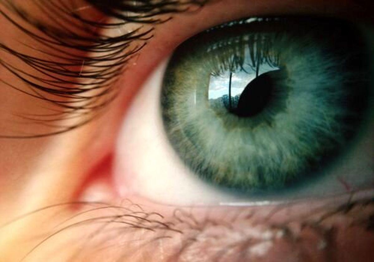 نکاتی برای مراقبت از چشم ها