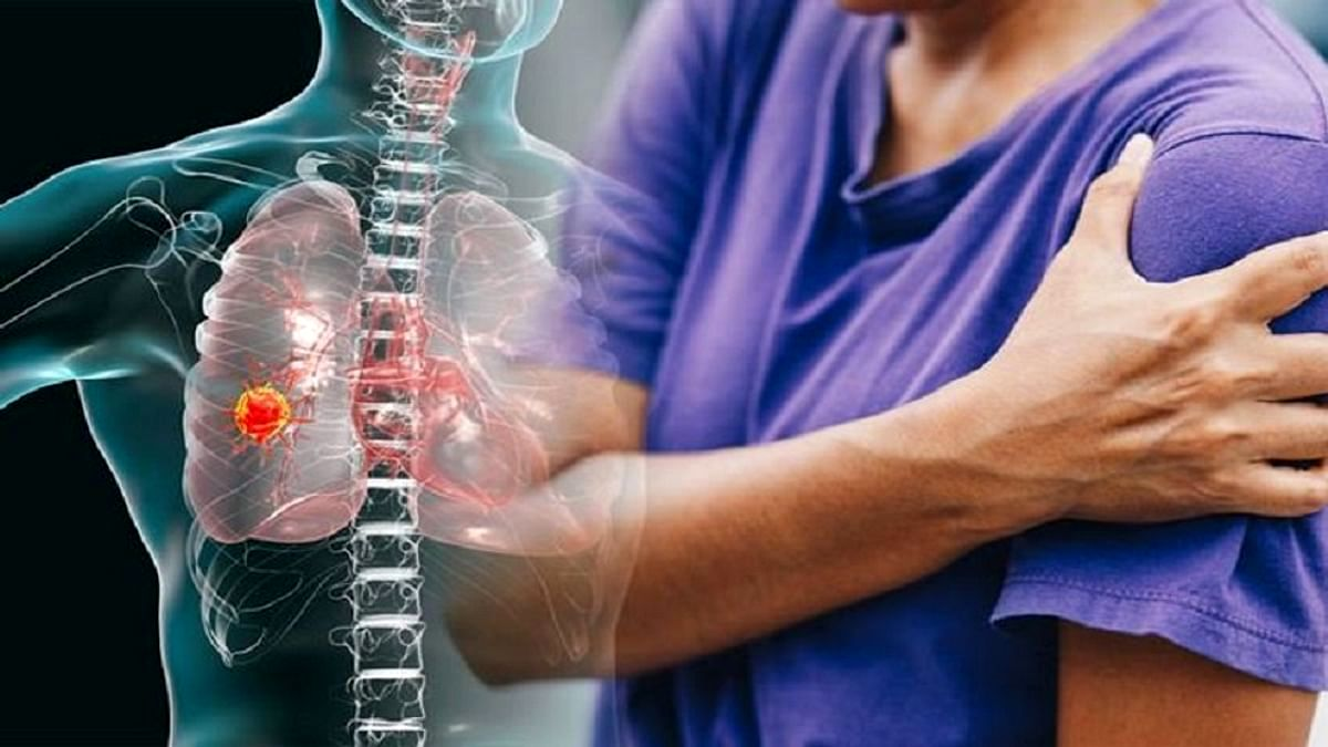 آیا می دانستید بعضی دردهای شانه نشانه سرطان ریه است ؟