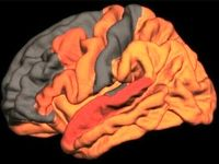 ارتباط کیفیت پایین خواب با ابتلا به آلزایمر
