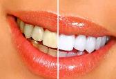 راههای جلوگیری از زردی دندانها