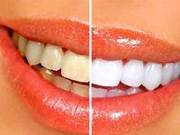 زردی دندانها نشانه چیست؟