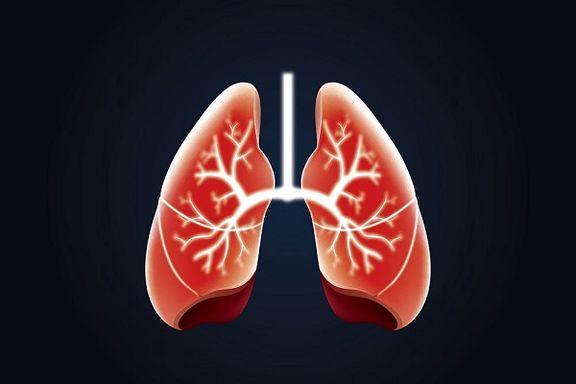 افزایش مبتلایان به انسداد ریه در میان غیرسیگاریها