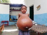بیماری نادر پسر 9ساله +عکس