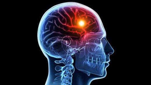 زمان طلایی را در سکته مغزی از دست ندهید