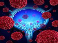 نابودی سرطان با خواص نوری نانو ذرات سیلیکون