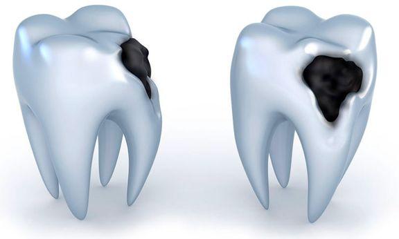 دانستنیهایی درباره پوسیدگی دندان