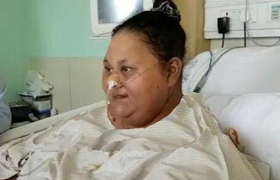 زن ۵۰۰ کیلویی با جراحی، نصف وزن خود را کم کرد