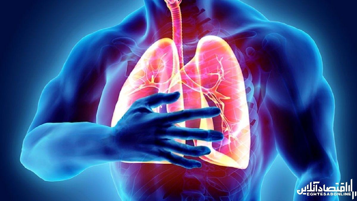 هر آنچه در مورد آمبولی ریه باید بدانید؟