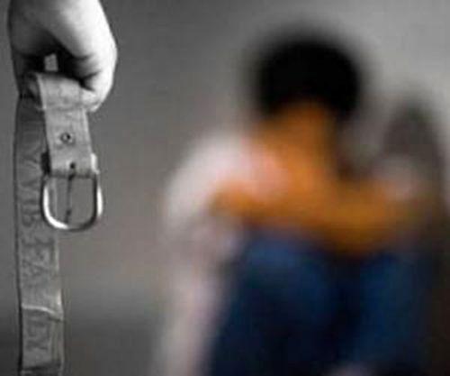 شکنجه پسر 1/5ساله به دست نامادری