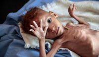 یک سوم کودکان زیر ۵سال جهان دچار سوءتغذیه هستند