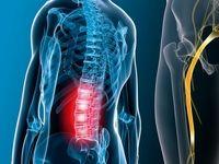 ۱۰ روش درمان «درد سیاتیک»