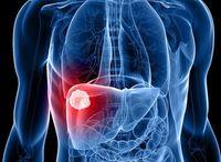 تولید داروی جدید برای درمان سرطان کبد