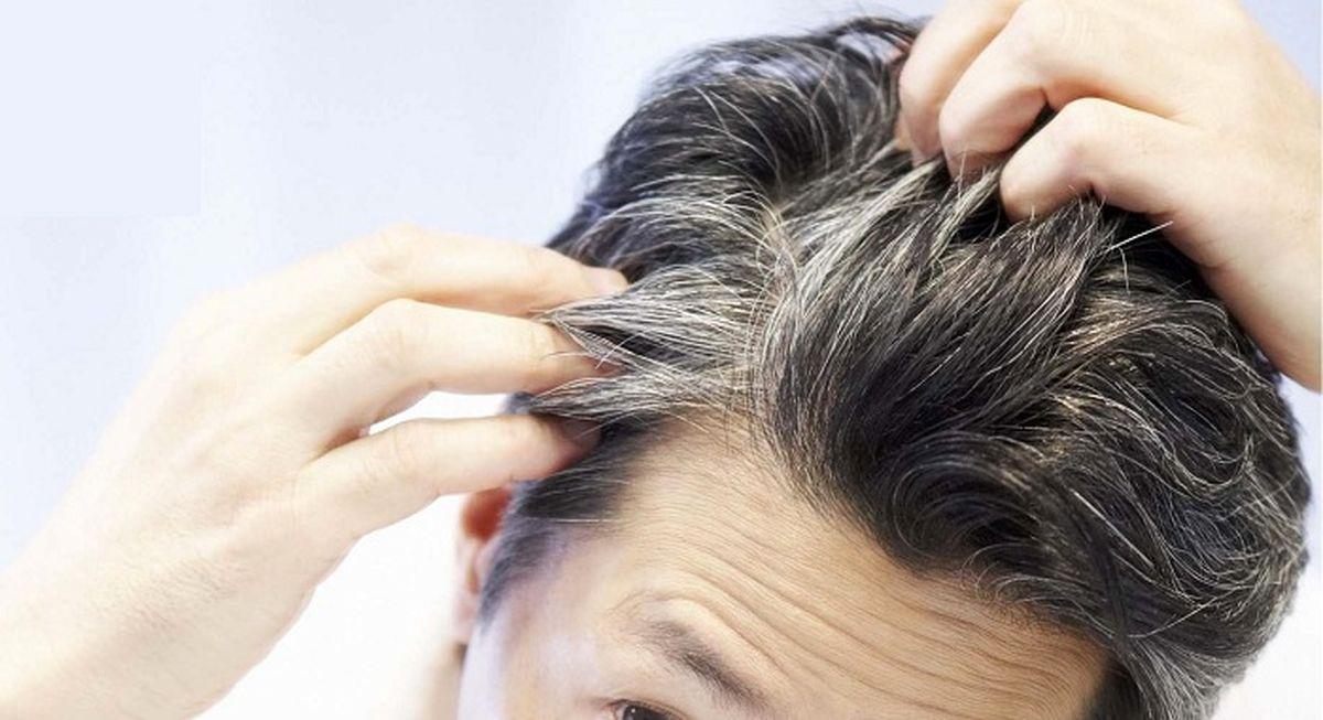 چرا موهایمان زود سفید میشود؟