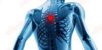 علل دردهای فوقانی کمر و قفسه سینه