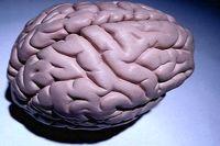 تشخیص محل HIV در مغز با اسکن MRI