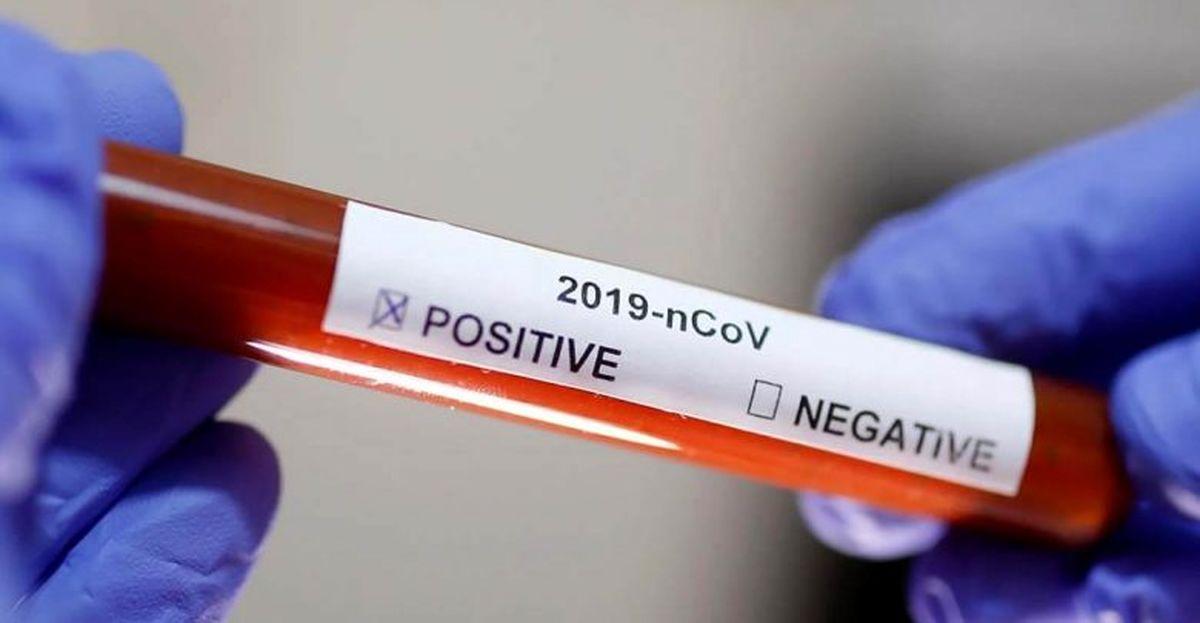 رابطه سکته مغزی با ویروس کرونا