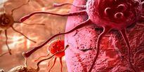 احتمال فعال شدن سلولهای خفته سرطانی پس از ابتلا به کرونا!
