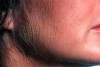 علت پرمویی صورت و بدن در زنان