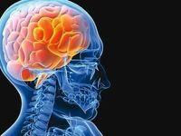 باورهای غلط درباره سکته مغزی