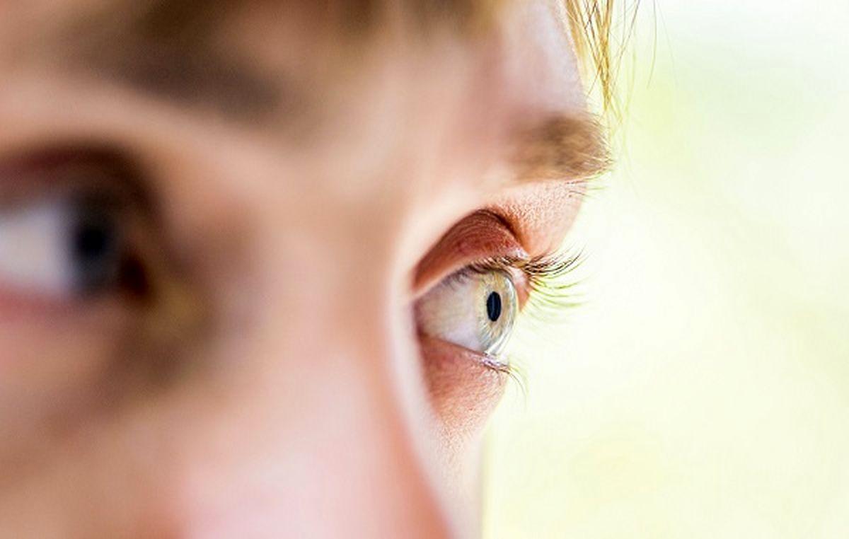 هر ۵ ثانیه یک نفر در جهان بینایی خود را از دست میدهد