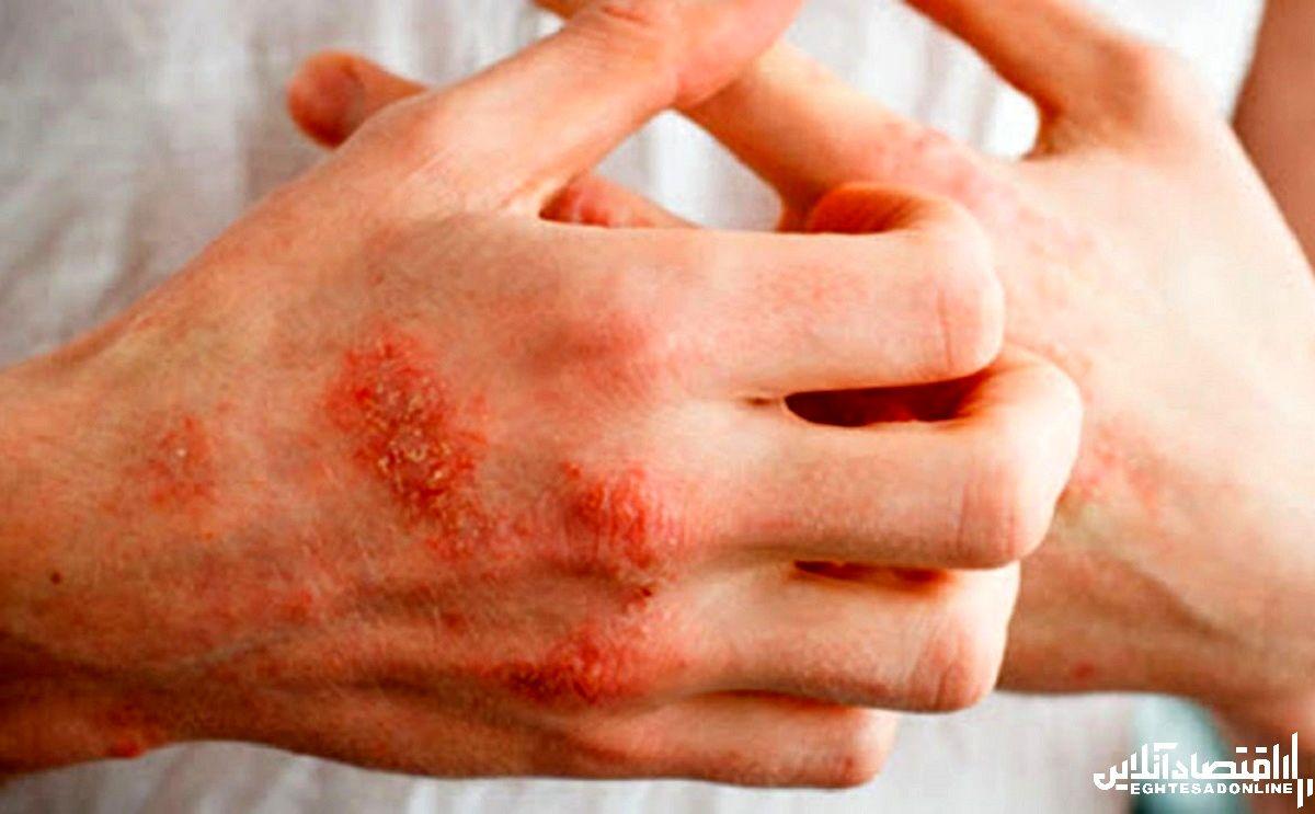 اگزمای آلرژیک چیست؟