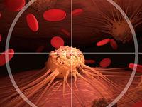 سرطان پروستات سومین سرطان رایج بین مردان ایرانی