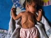 کرونا ۱۰۰میلیون نفر از جمعیت جهان را دچار فقر میکند