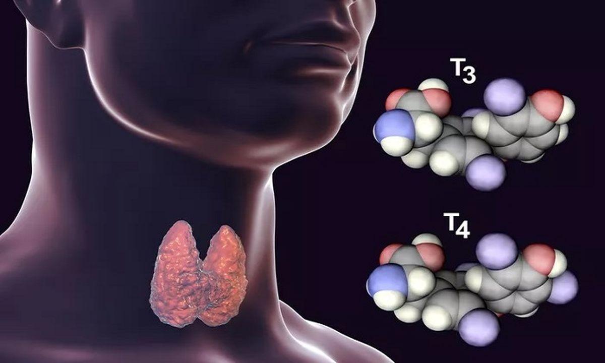 انواع التهاب تیروئید و درمان آن
