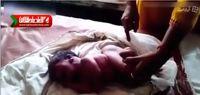 نوزادی با چهار پا متولد شد +فیلم