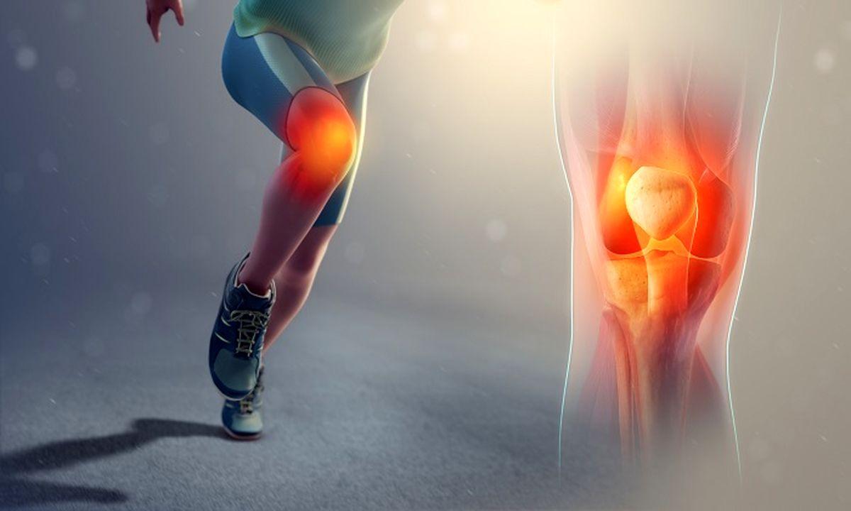 آشنایی با اختلال زانوی دونده
