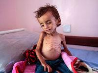 تصاویر وحشتناک از کودکان یمنی +فیلم