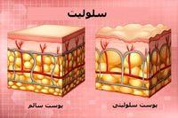 سلولیت چیست و چگونه میتوان آن را درمان کرد؟