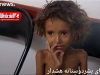 تصاویری از قحطی و گرسنگی شدید در یمن +فیلم