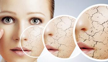 چرا در زمستان باید بیشتر مراقب پوستتان باشید؟