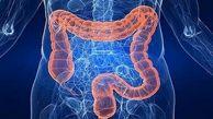 سرطان روده بزرگ در کمین زنان چاق