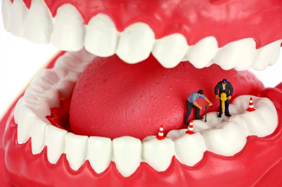 تاسیس صندوق بیمه دندانپزشکی در دستور کار