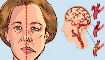 افزایش آهن خون و خطر سکته مغزی