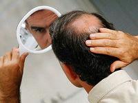 علت افزایش ریزش ارثی مو در تابستان