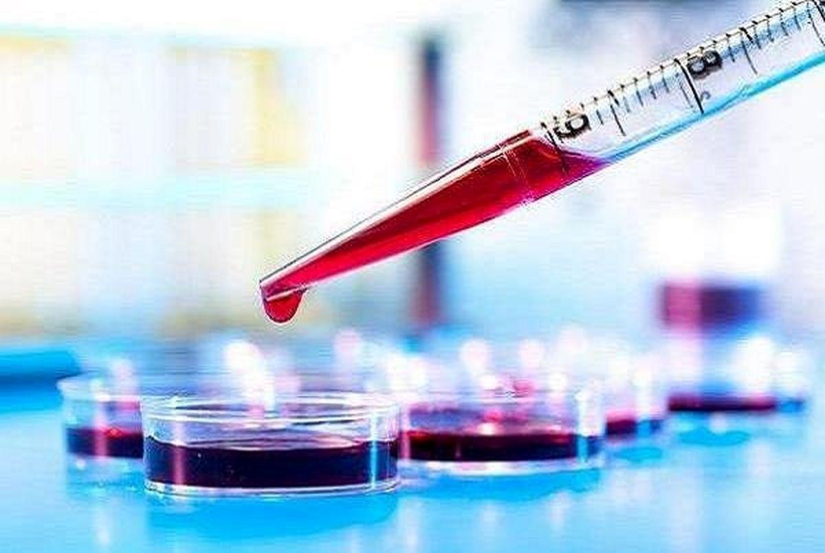 تشخیص آلزایمر با وجود میزان مس در خون