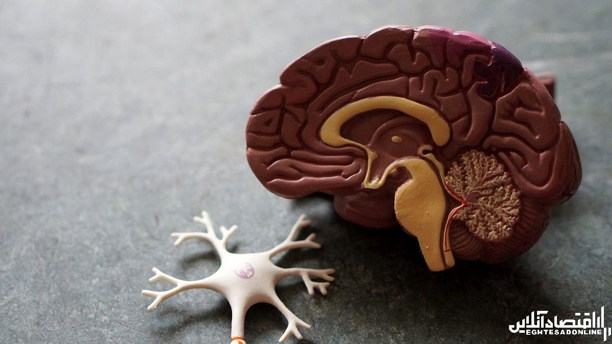 کنترل قندخون در پیشگیری از آلزایمر موثر است