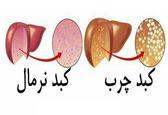 درمان کبد چرب؛ فقط با یک تغییر در رژیم غذایی